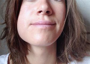 डेंटिस्ट से मिलने के बाद मुंह की देखभाल