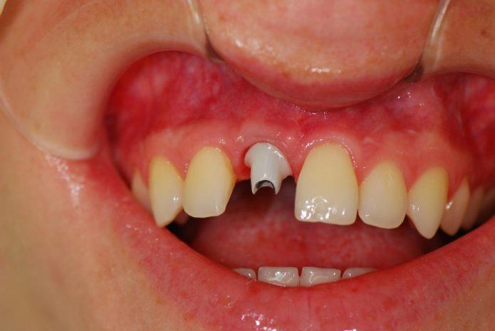 दाँत मुकुट