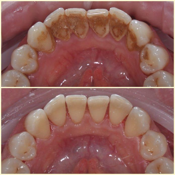 दाँत क्षय क्षय