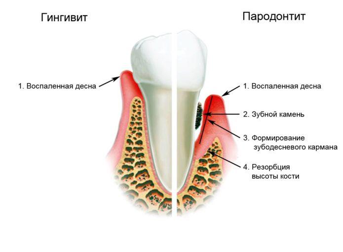 दांतों और मसूड़ों के रोग
